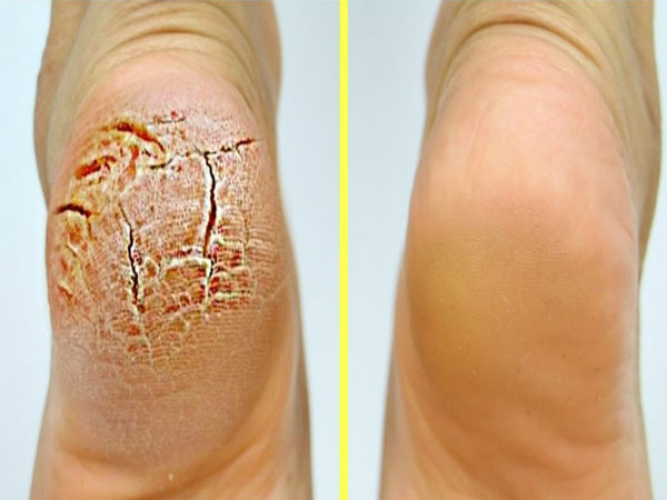 home remedies for cracked heels in this winter season