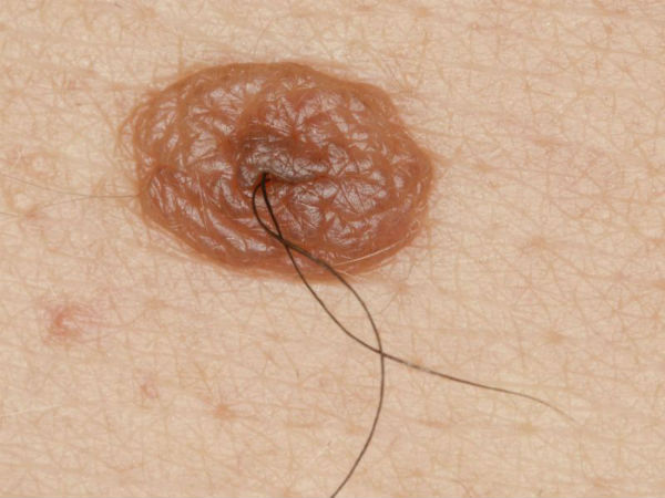 Ask a Docotor: Are Hairy Moles Cancerous?