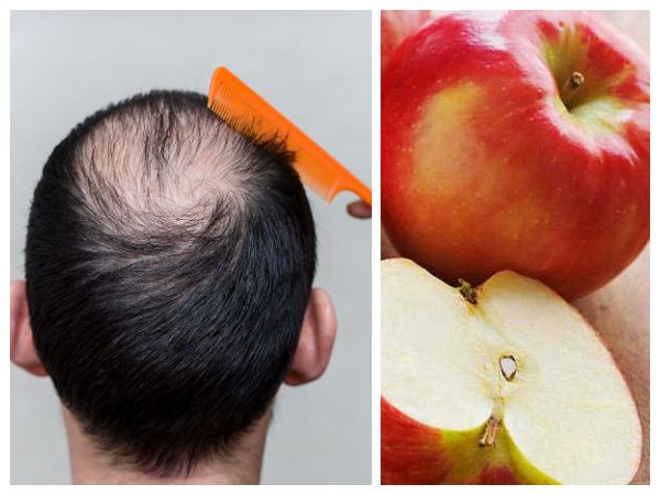 How To Use Apple For Hair Loss