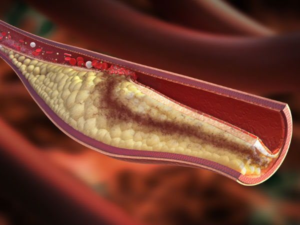 Foods That Can Cleanse Your Arteries Naturally