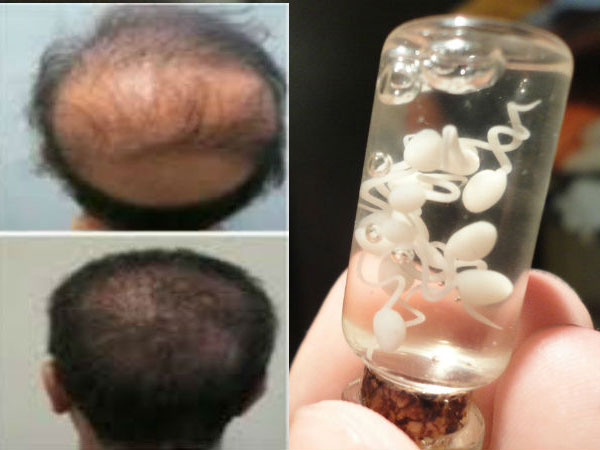 Bull Semen Can Treat And Cure Bald