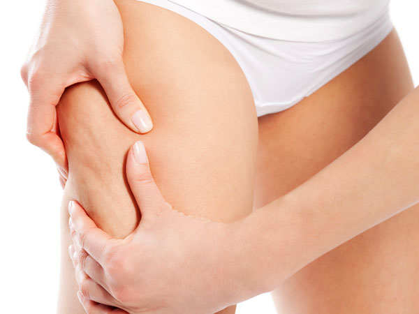How to Get Rid of Cellulite in Thighs