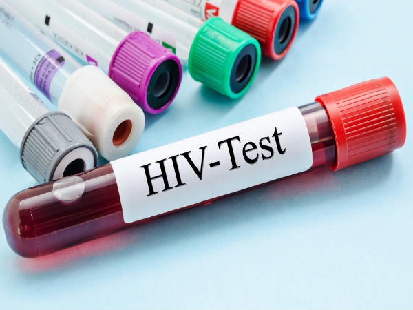 Goa Govt To Make HIV Test Mandatory Before Marriage