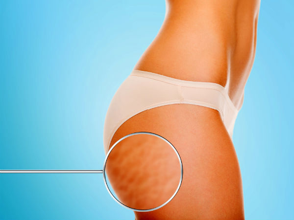 Everyday Habits That Might Give You Cellulite