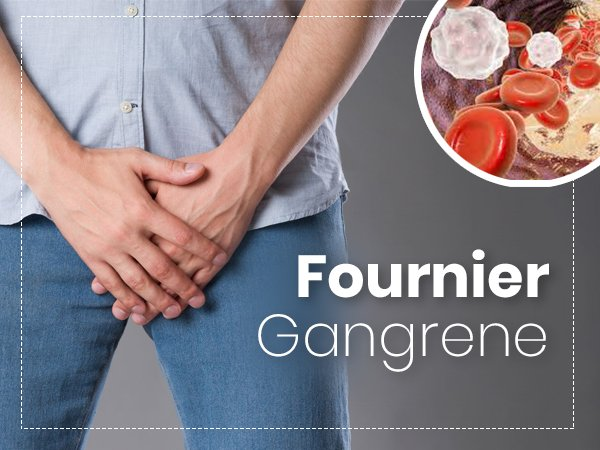 Fournier Gangrene