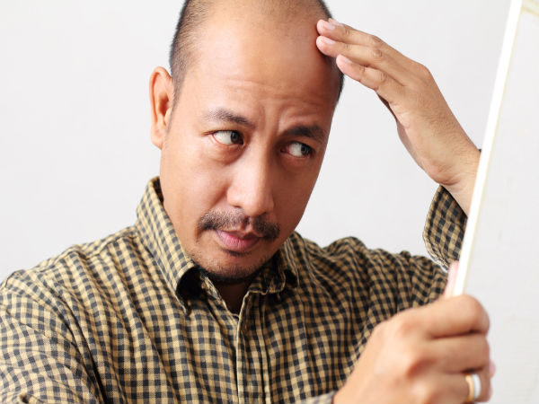 Can Bald People Get Dandruff?