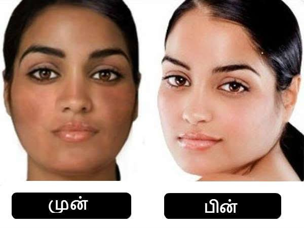 Natural Home Remedies For Uneven Skin Tone On Face And Body