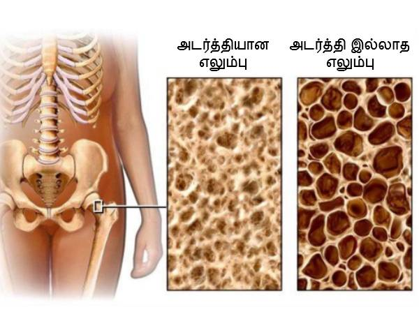 Ways To Restore Bone Density