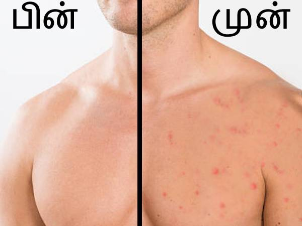 Grooming Guide For Men To Get Rid Of Chest Acne