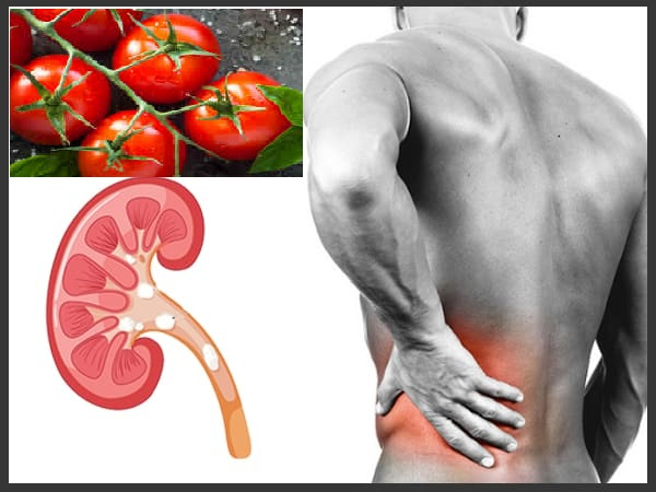 Can Eating Tomatoes Cause Kidney Stones