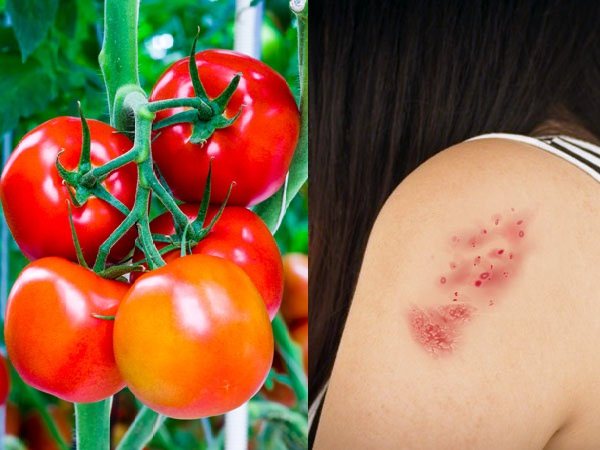 Can eating tomatoes flare up your Psoriasis?