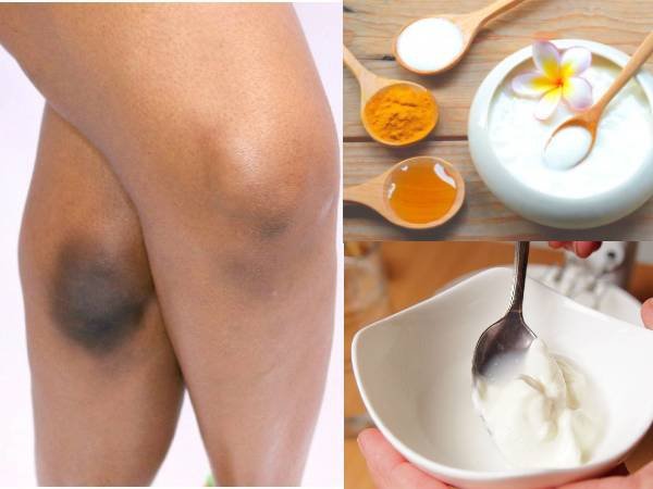 Home Remedies To Get Rid Of Dark Knees That Actually Work