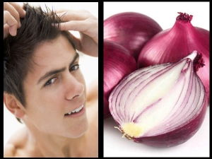 Amazing Ways To Use Onions For Hair Growth