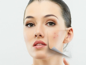 Ayurvedic Natural Cure For Pimples Or Acne