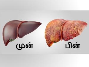 Common Habits That Damage Your Liver
