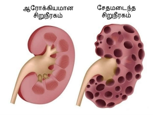 These Common Habits That Damage The Kidneys