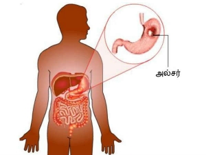 The Best Natural And Home Remedies For Stomach Ulcers