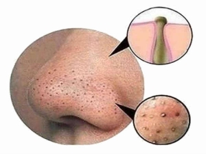 Remedies To Easily Cure The Problem Of Blackheads