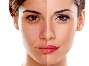 Natural Recipes For Instant Glowing Skin
