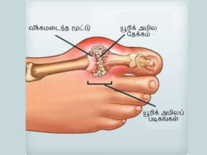 Quick Home Remedies For Gout
