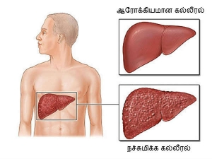 Best Foods That Are Healthy For Liver