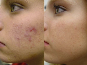 Top Ways To Remove Acne Scars Fast In 7 Days