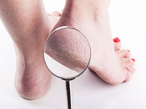 Eight Remedies To Have Cracked Free Feet