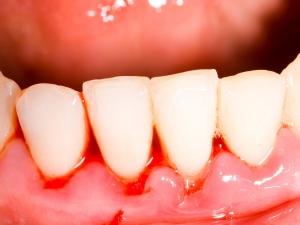 Home Remedies Gum Swelling