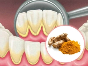 How Whiten Teeth Naturally With Turmeric