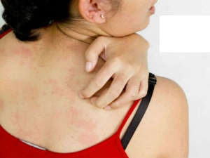 Seven Home Remedies To Treat Prickly Heat Or Heat Rash