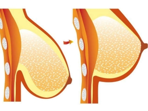 Home Remedies Against Sagging Breasts