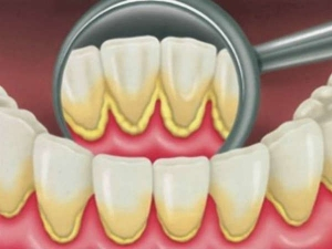How To Remove Plaque From Back Of Teeth