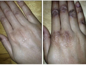 Excellent Home Remedies For Dark Finger Joints And Fingers