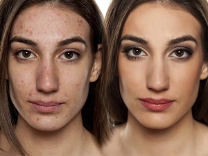 Incredible Home Remedies For Acne That Actually Work