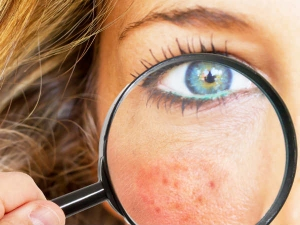 Home Remedies Remove Acne Scars
