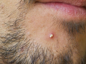 Home Remedies For Pus Filled Pimples
