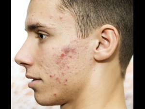 Skin Care For Men Easy Tips To Get Rid Of Pimples