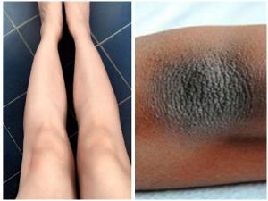 Home Remedies To Whiten Your Dark Knees