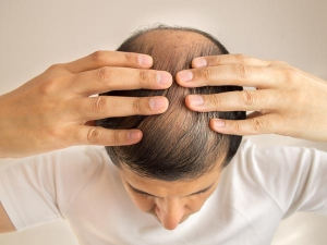 Reasons Why Your Hair Is Not Growing