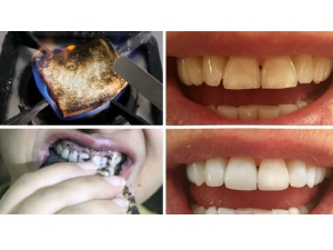 Is Burnt Bread As Teeth Whitener Better Toothpaste