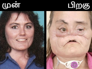 The Love Story First U S Face Transplant Recipient