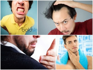 Common Indian Guy Grooming Problems Solved