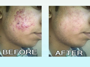 Top Ten Home Remedies That Will Help You Avoid Pimples