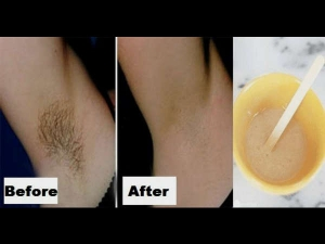 You Only Need 2 Ingredients 5 Minutes To Get Rid Underarm Hair Forever