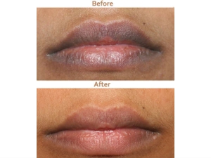 Amazing Remedy That Makes Your Lips Soft Pink Just 10 Minutes