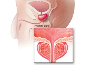 Natural Remedies Enlarged Prostate Shrink Your Prostate Painless And Easy