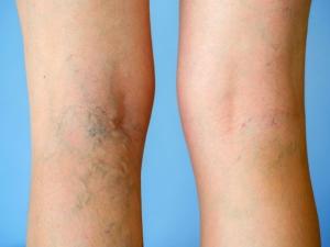 You May Have Deep Vein Thrombosis Dvt Causes Symptoms