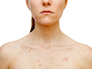 If You Are Suffering From Chest Acne Try These 6 Home Remedi
