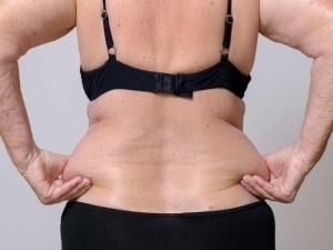 Quick Remedy Get Rid Fat Toxins