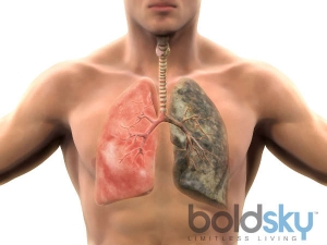 Symptoms Lung Cancer You Should Know